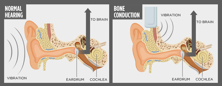 normal-hearing-vs-bone-conduction-techie